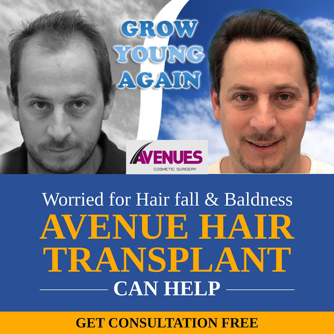 Get Hair Transplant in Ahmedabad With EMI