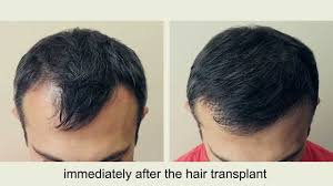 highly experience hair-transplant surgeon.